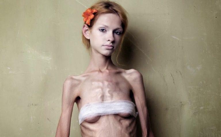 Η νευρογενής ανορεξία, (Anorexia Neyrosa).